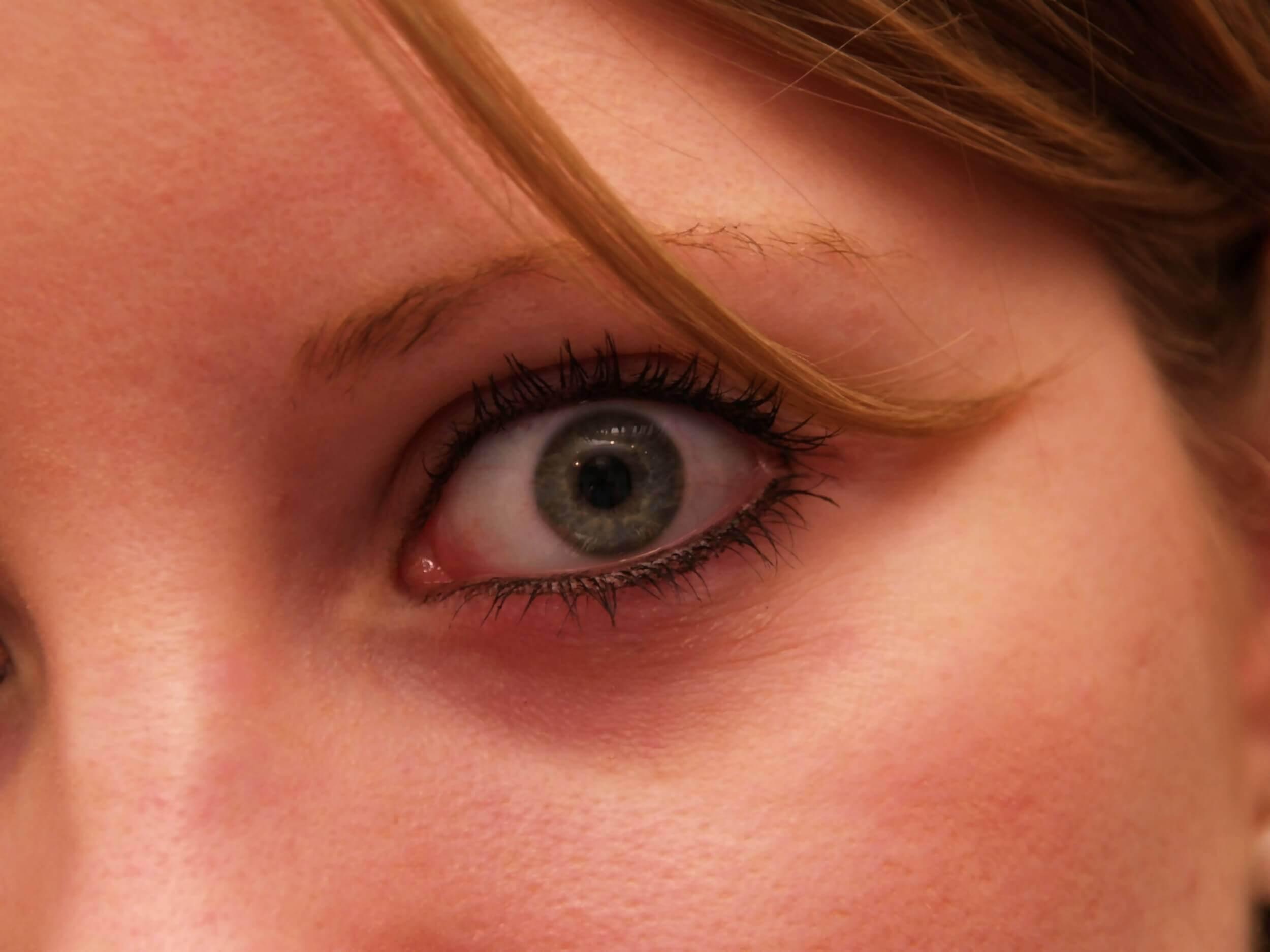 Auge (c) bbroianigo / pixelio.de