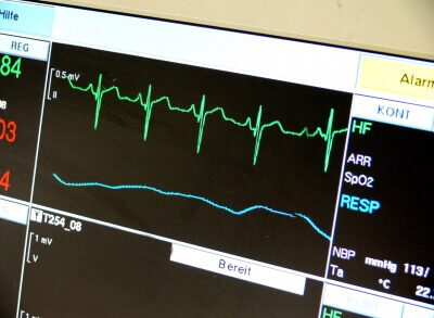 EKG (c) Michael Bührke / pixelio.de